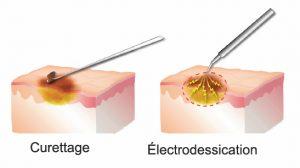 Curettage et électrodessication