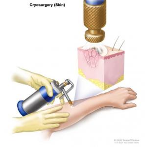 Cryochirurgie ou cryothérapie