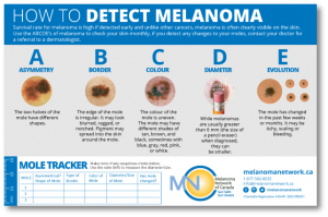Melanoma Prevention and Detection Postcard