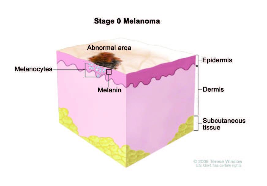 melanoma stage 0 in situ