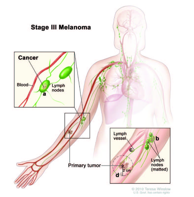 Stage 3 melanoma