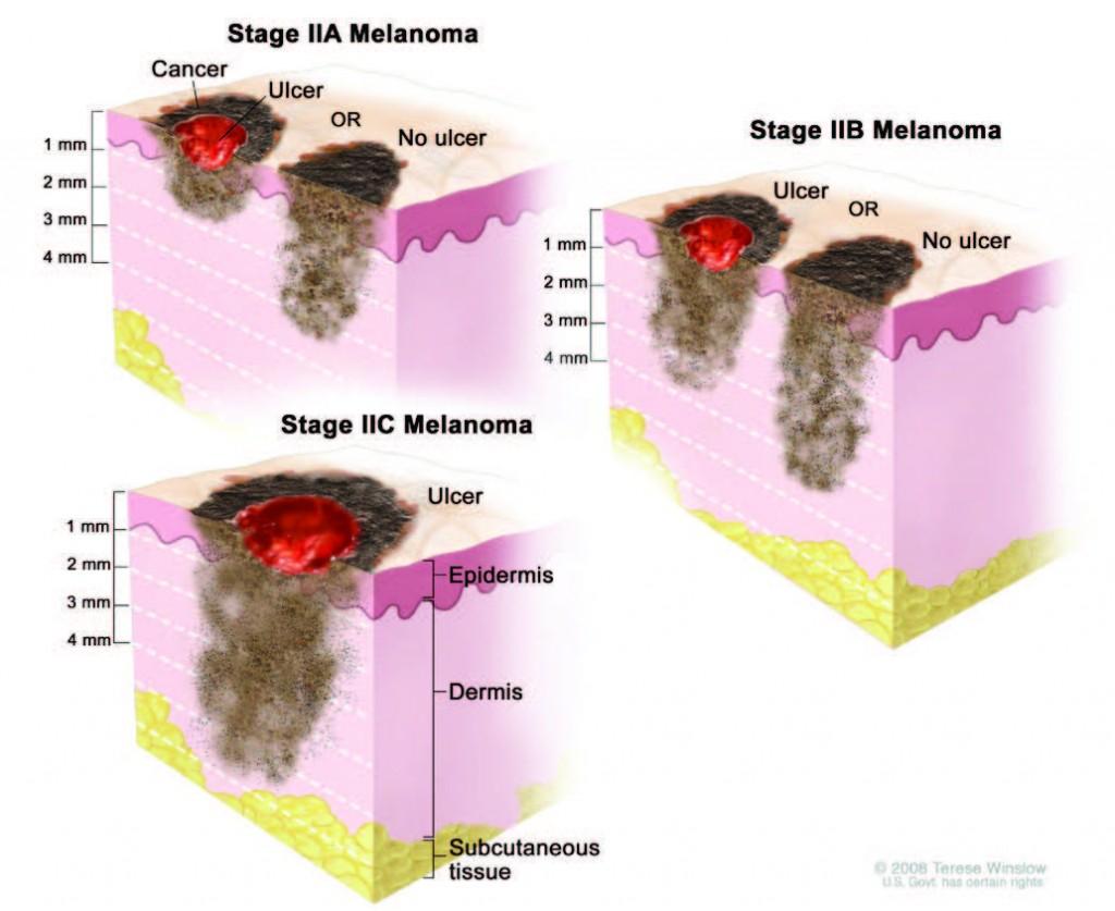 Melanoma Stages Stages Of Melanoma In Situ Stage 0 To Iv Advanced Melanoma