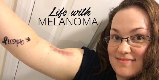 melanoma scarring