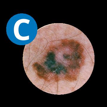 C COLOUR melanoma
