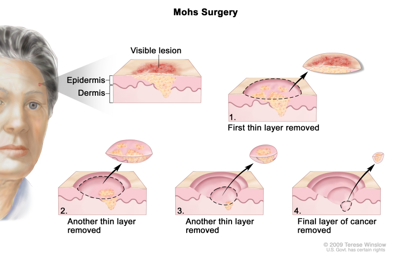 Mohs surgery CSCC