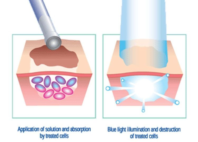 photodynamic therapy skin cancer