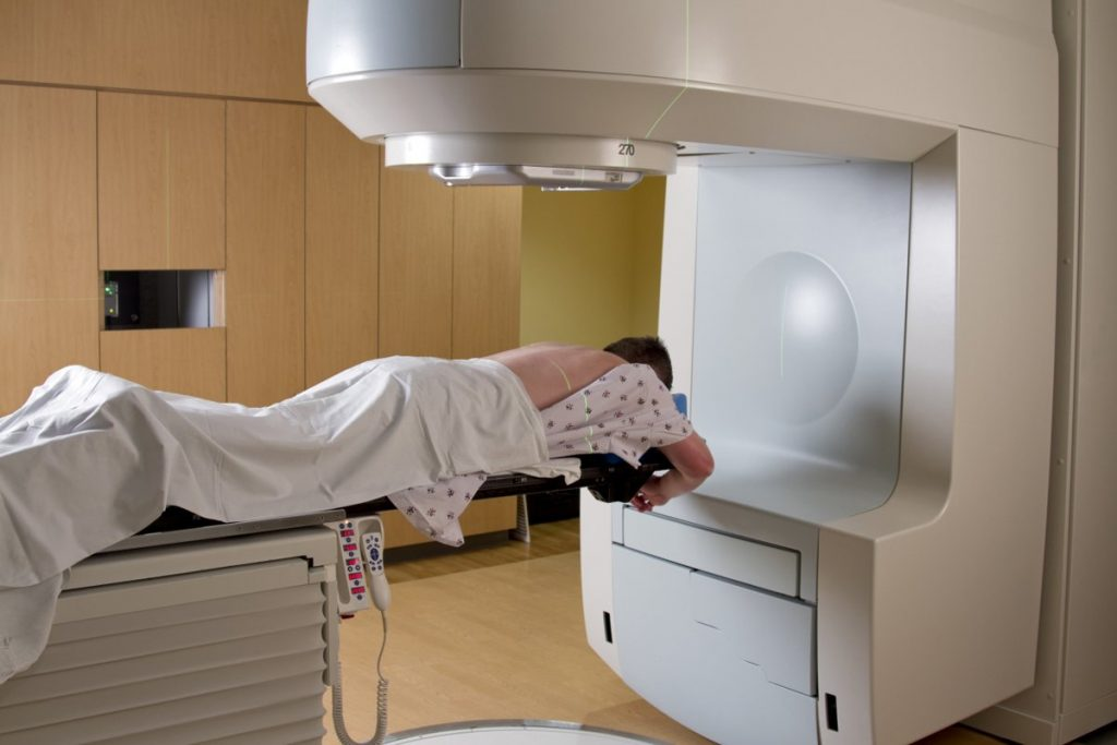 radiation therapy cscc