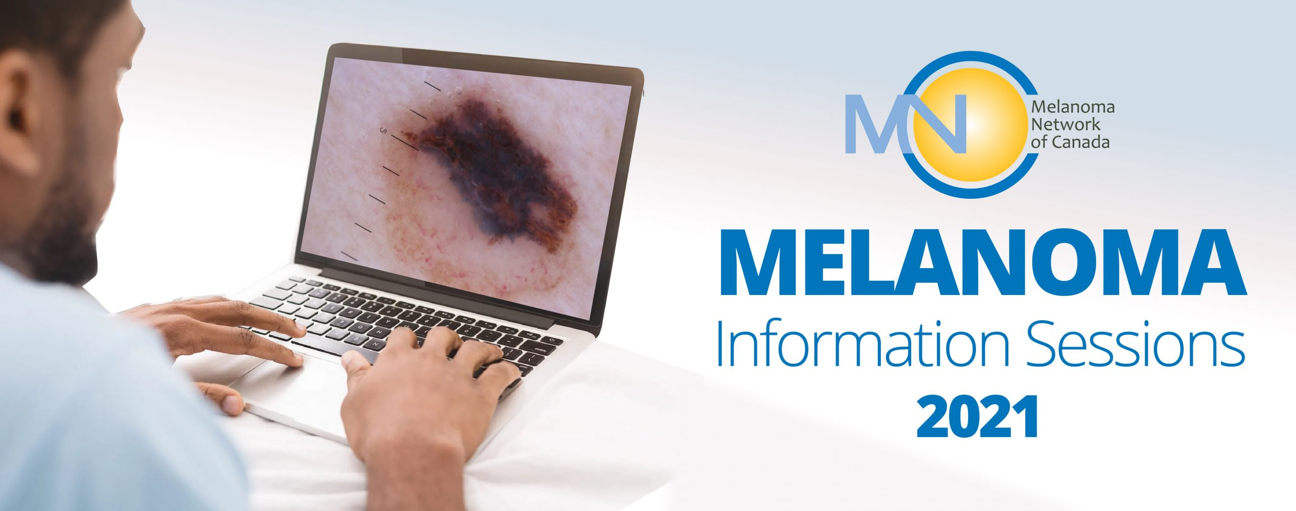 Melanoma Information Sessions